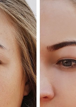 Puffy-Eyes-treatment