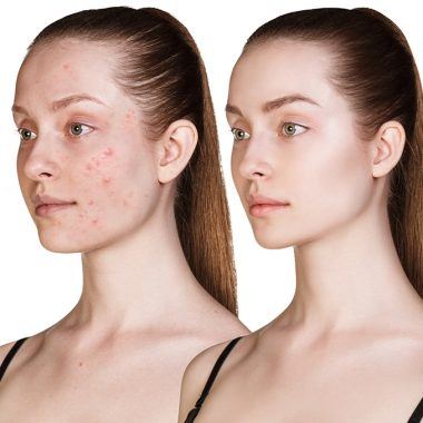 Acne Remedies: Natural Herbal Acne Treatments