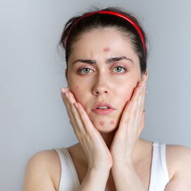 Acne Causes, Treatments and Natural Remedies