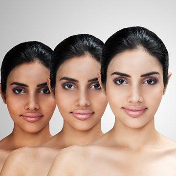 Skin Lightening