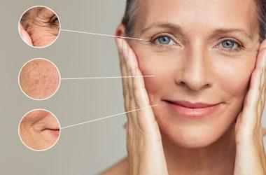 Wrinkles Remedies