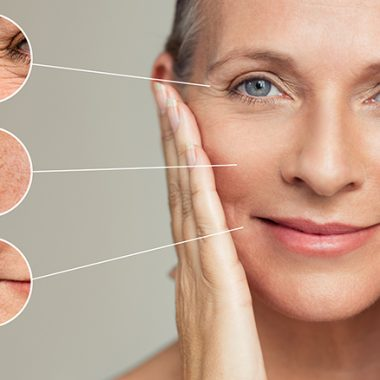 Natural Wrinkles Remedies: Treat Wrinkles At Home